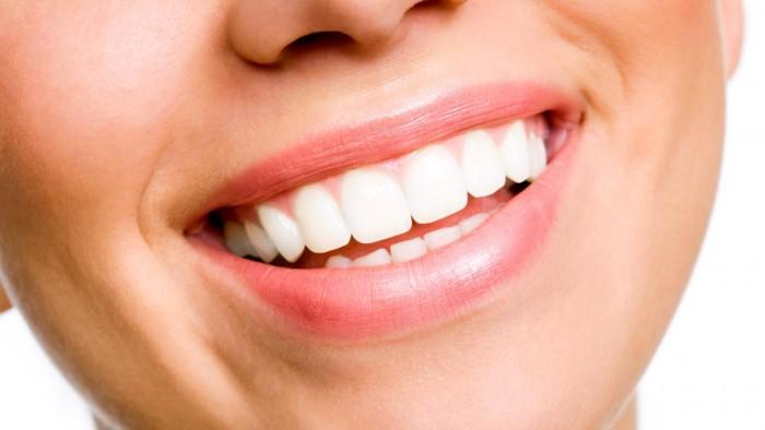 denti-bianchi-