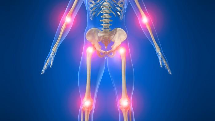 reumatismi-dolori-articolari